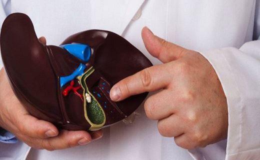 دفع سنگ کیسه صفرا به روش طب سنتی