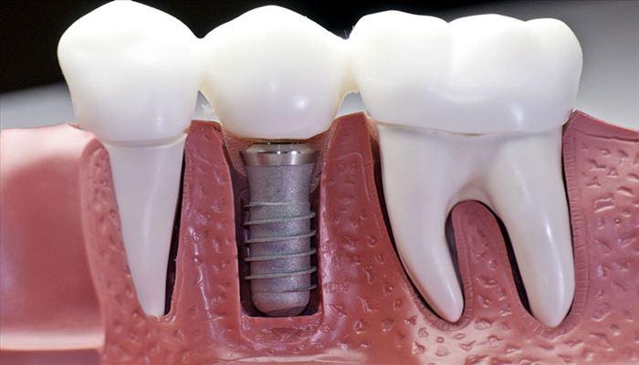 درون کاشت دندانی یا ایمپلنت چیست؟ - مراحل، قیمت، فیلم و مراقبتهای بعد از کاشت