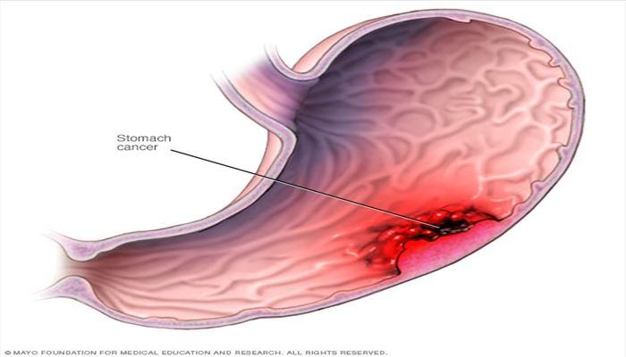 علائم و نشانه های سرطان معده