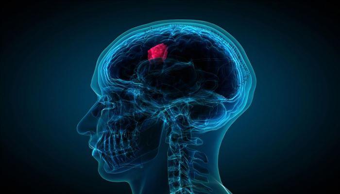 آیا علائم اصلی تومور مغزی را می شناسید؟