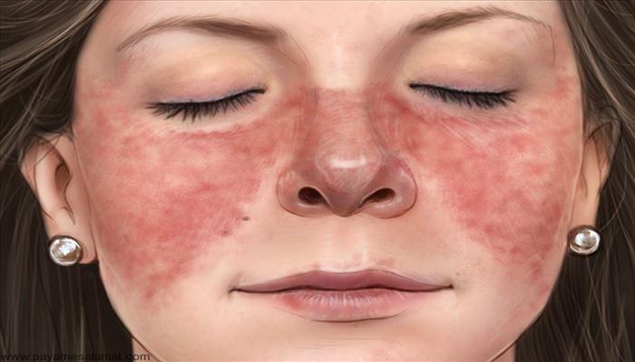 لوپوس شایع ترین بیماری روماتولوژی