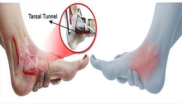 علت و درمان سندرم تونل تارسال