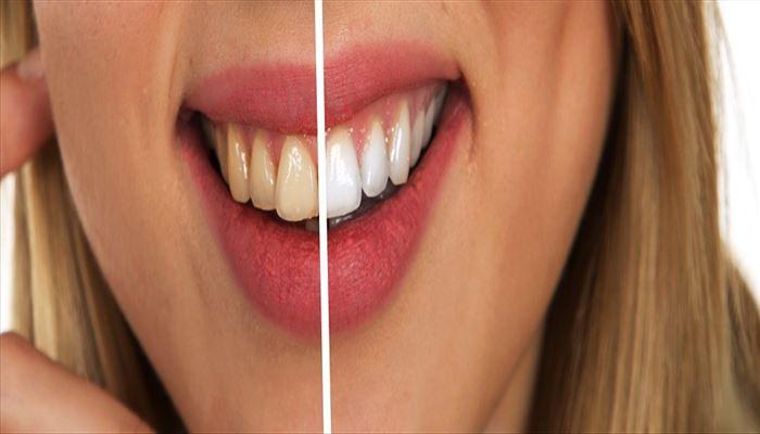 تفاوت دندانپزشک عمومی با دندانپزشک زیبایی